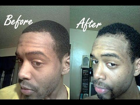 Three 100% Natural Hair Regrowth Success Stories & Before & After Time Lapse Photos