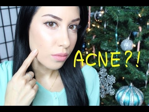 What is your acne telling you? | WHY are you breaking out?!