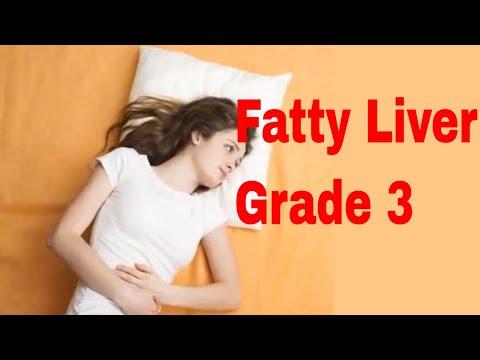 Fatty Liver Grade 3