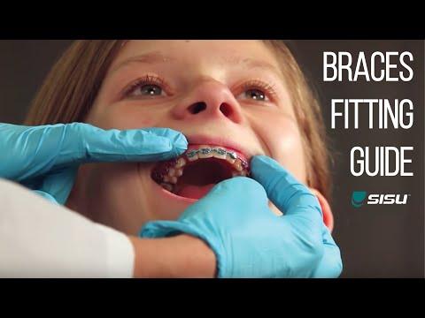 Fitting SISU Mouthguard with Braces