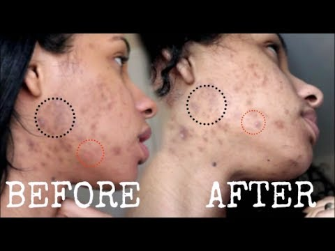 Get Rid Of Acne With Baking Soda - 2 Weeks DETAILED RESULTS | CurlsBeauty