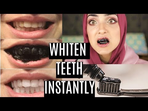 Whiten Teeth AT HOME in 1 MINUTE (100% Natural) | DIY Charcoal Toothpaste ~ Immy
