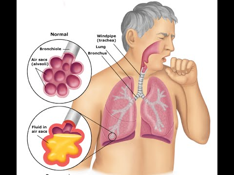 Bacterial Pneumonia: Symptoms & Treatment