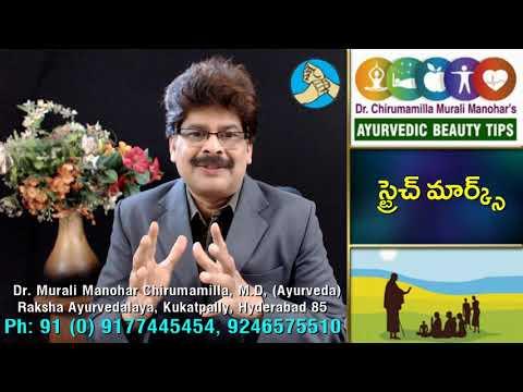 Stretch Marks and Ayurvedic Remedies in Telugu by Dr. Murali స్ట్రెచ్ మార్క్స్ కి చికిత్స