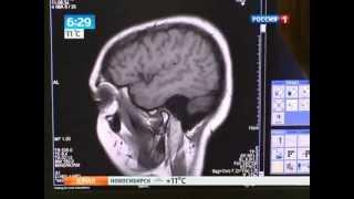 Эпилепсию вылечат с помощью магнитного поля