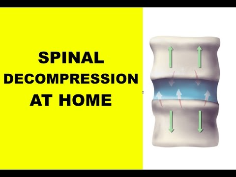 Spinal Decompression at Home Exercises for Sciatica (FEEL GOOD STRETCHES)