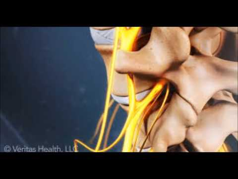 Treating Sciatic Pain - How Can I Get Rid Of My Sciatica Pain