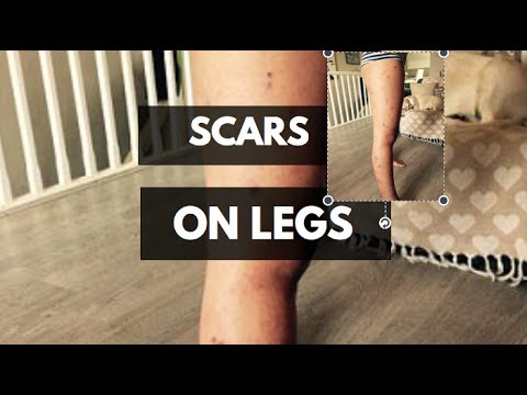 Rita, How Can I Get Rid Of Scars on Legs Fast