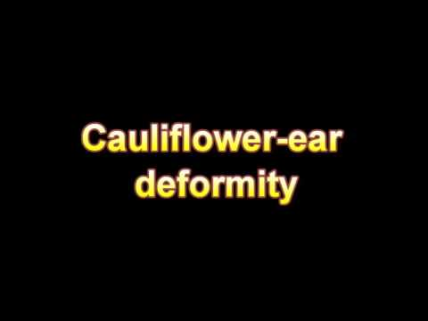 What Is The Definition Of Cauliflower ear deformity - Medical Dictionary Free Online