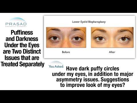 How to Choose Between Cosmetic Fillers or Surgery to Treat Puffy Eye Bags and Dark Circles