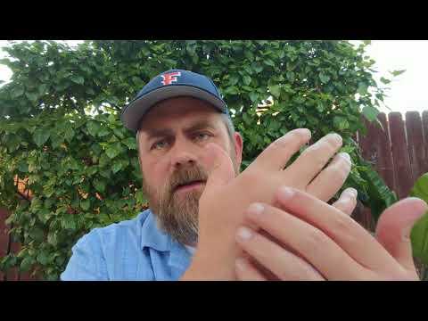 Rheumatoid Arthritis and Chronic Pain