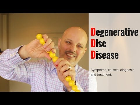 Degenerative Disc Disease Causes and Treatment