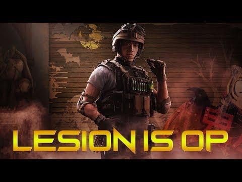 Lesion is OP - Rainbow Six Siege