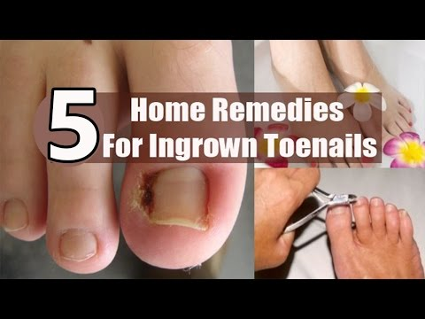 5 Home Remedies for Infected Ingrown Toenails.