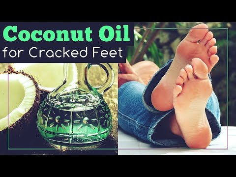 Coconut Oil for Cracked Feet: How to Use It?
