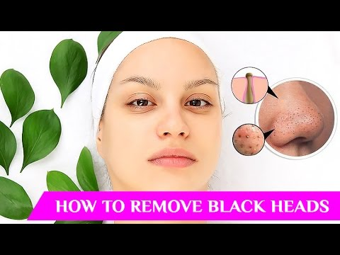 How to remove blackheads, How to remove whiteheads, How to remove whiteheads from nose, Blackheads