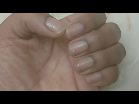 3 Must Have Essential Oils To Grow Long Nails Naturally
