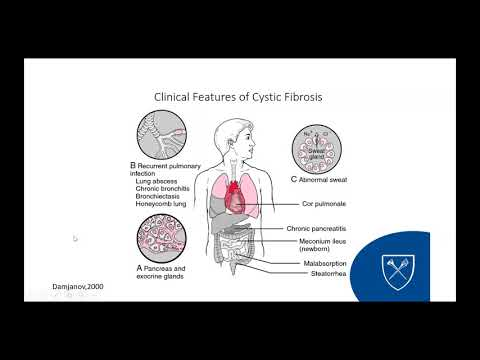 Lessons in Progress Treating Cystic Fibrosis, with Application to Other Childhood Diseases
