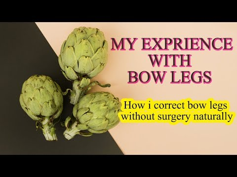 Bow Legs - How to correct bow legs without surgery naturally my exprience