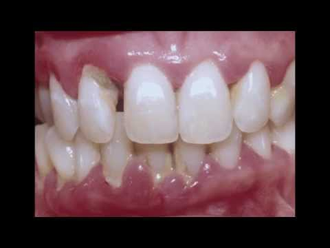 Periodontitis : Cure your Gum with Dr Mark Bonner