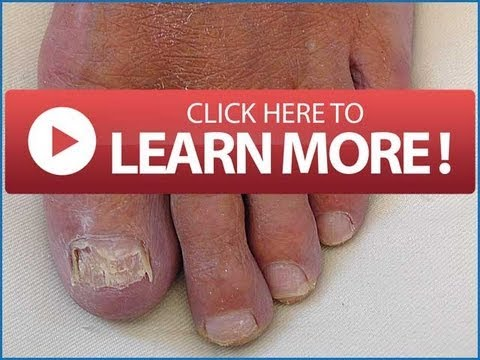 FINGERNAIL Infection   Toenail Fungus Home Remedy You Must Know