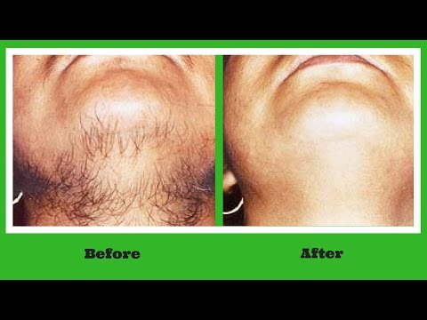 Permanent Hair Removal at Home | Ayurvedic Remedy to Get Rid off Unwanted Facial Hair