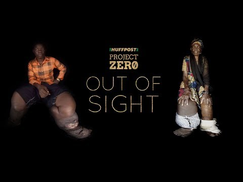 'Out Of Sight' 360-Degree Film Series: Elephantiasis