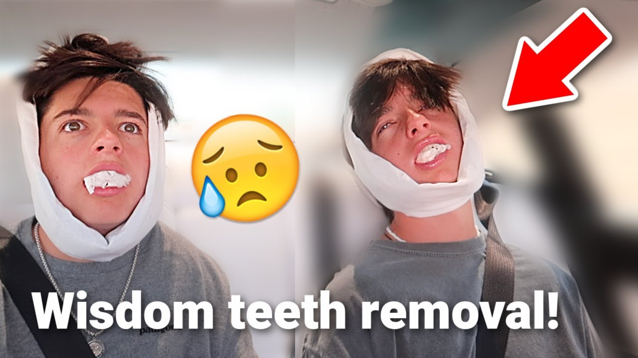 Identical TWINS Get Their WISDOM TEETH Out! (Hilarious Reaction)