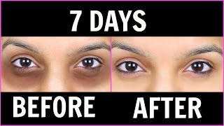 Remove Dark Circles (काले घेरों) - 6 Magical Remedies (100% Effective) | PrettyPriyaTV