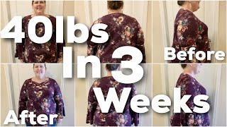 Losing 40 Pounds In 3 Weeks - My Bariatric Surgery Story and Gastric Sleeve Results
