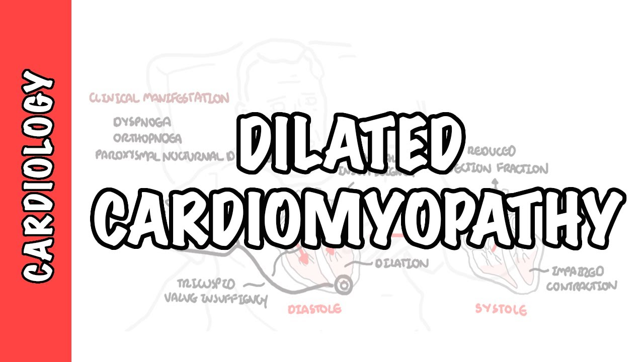 Dilated Cardiomyopathy - causes, symptoms, pathophysiology and treatment