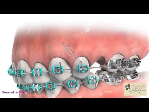 TAD for Mesializing Molars - Wellington Village Orthodontics