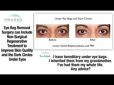 Eye Bag Removal Surgery that Leaves no Sign of Surgery, and Improving Under Eye Skin