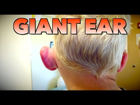 GIANT EAR: Allergic Reaction or Infection? | Dr. Paul