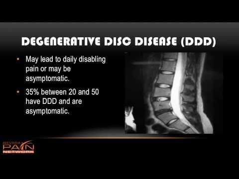 Avoiding Surgery with Degenerative Disc Disease  (702) 323-0553