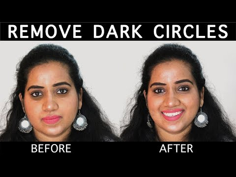 डार्क सर्किल  I How To Remove Dark Circles Permanently (100% Results) | Happy Pink Studio