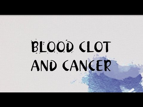 Blood clots and cancer