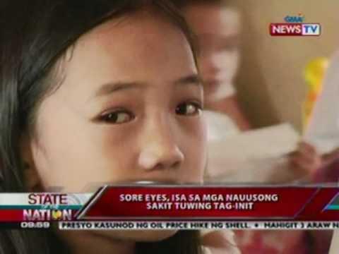 SONA: Sore eyes, isa sa mga nauusong sakit tuwing tag-init