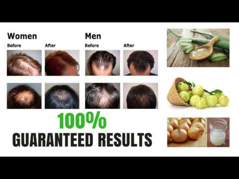 How to Regrow Hair Naturally - Number 1 Home Remedy for Men and Women