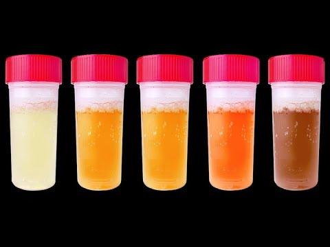 आपकी पेशाब का रंग क्या कहता है ? what does your urine color say ?