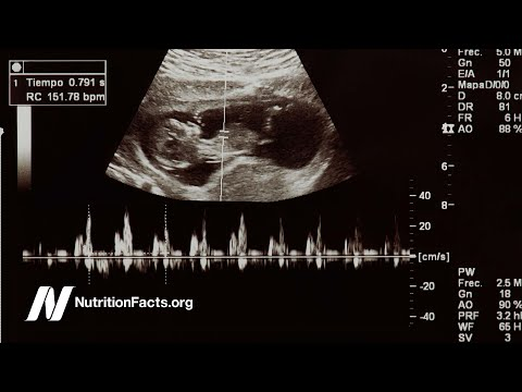 Heart Disease May Start in the Womb