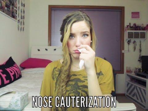 Nose Cauterization: My Experience