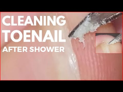 Cleaning toenail after shower.