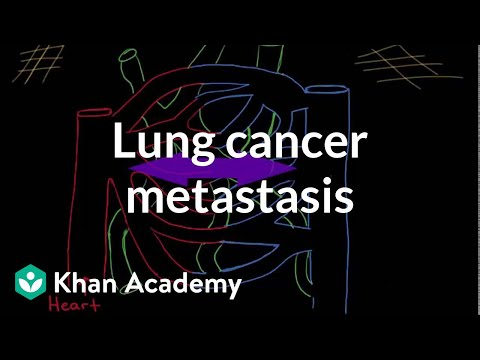 Lung cancer metastasis | Respiratory system diseases | NCLEX-RN | Khan Academy