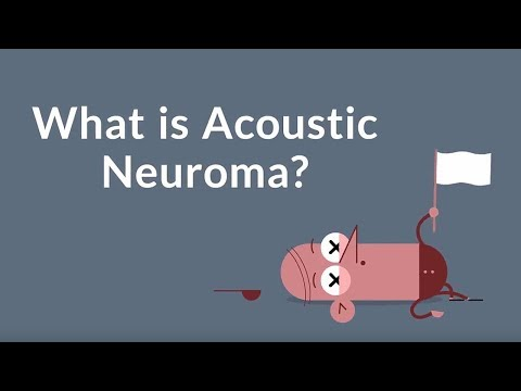 What is Acoustic Neuroma? (A Noncancerous Tumor)