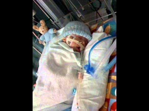 INFANT BOTULISM , HEALTH EDUCATION , INFECTION CONTROL (ICSP) , URDU / HINDI