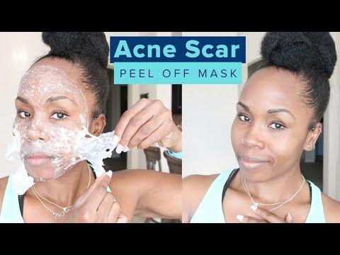 Acne Scar Removal Skincare Peel   Remove Dead Skin, Oily Skin, Skin Pigmentation & Blackheads