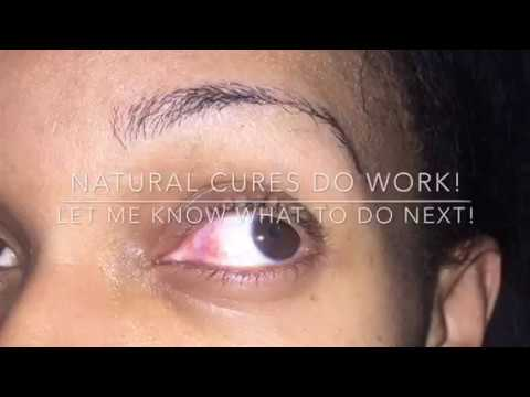 Natural Cure for Pinkeye Treatment  (cured in 2 days)