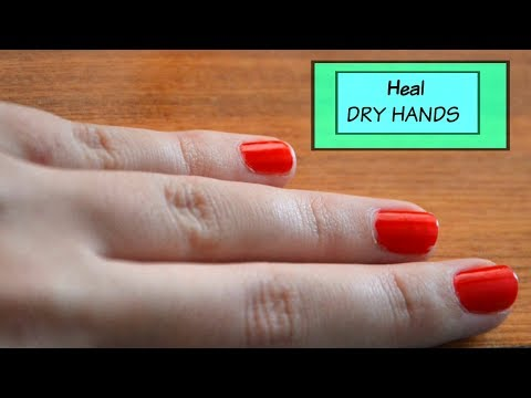 Remedy for Dry & Rough Hands...