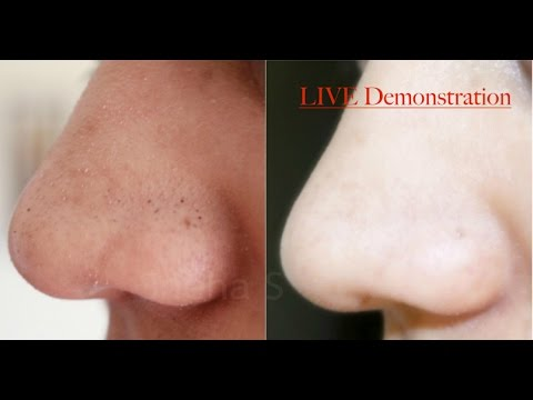 How I Removed My Blackheads & Whiteheads Naturally! (Live Demonstration)